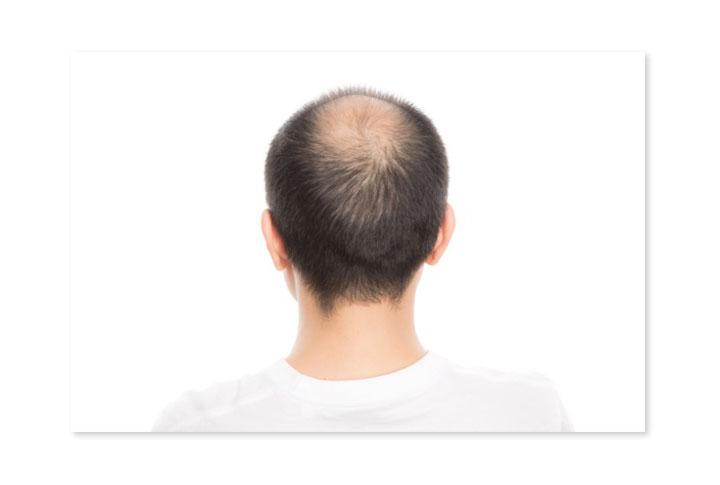 頭頂部のハゲ(薄毛)
