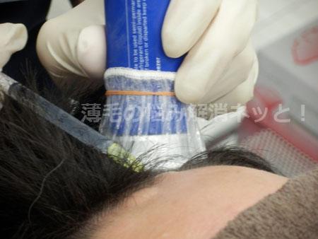 頭皮に注射する画像