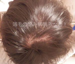 AGAスキンクリニックの薄毛治療